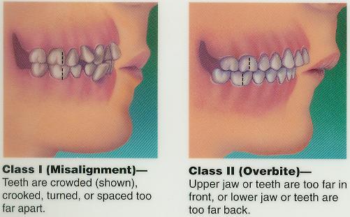 Orthodonics Dentistry Naperville Dentist J A Haselhorst